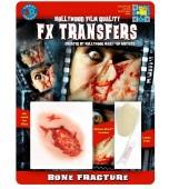 3D FX Transfers - Bone Fracture